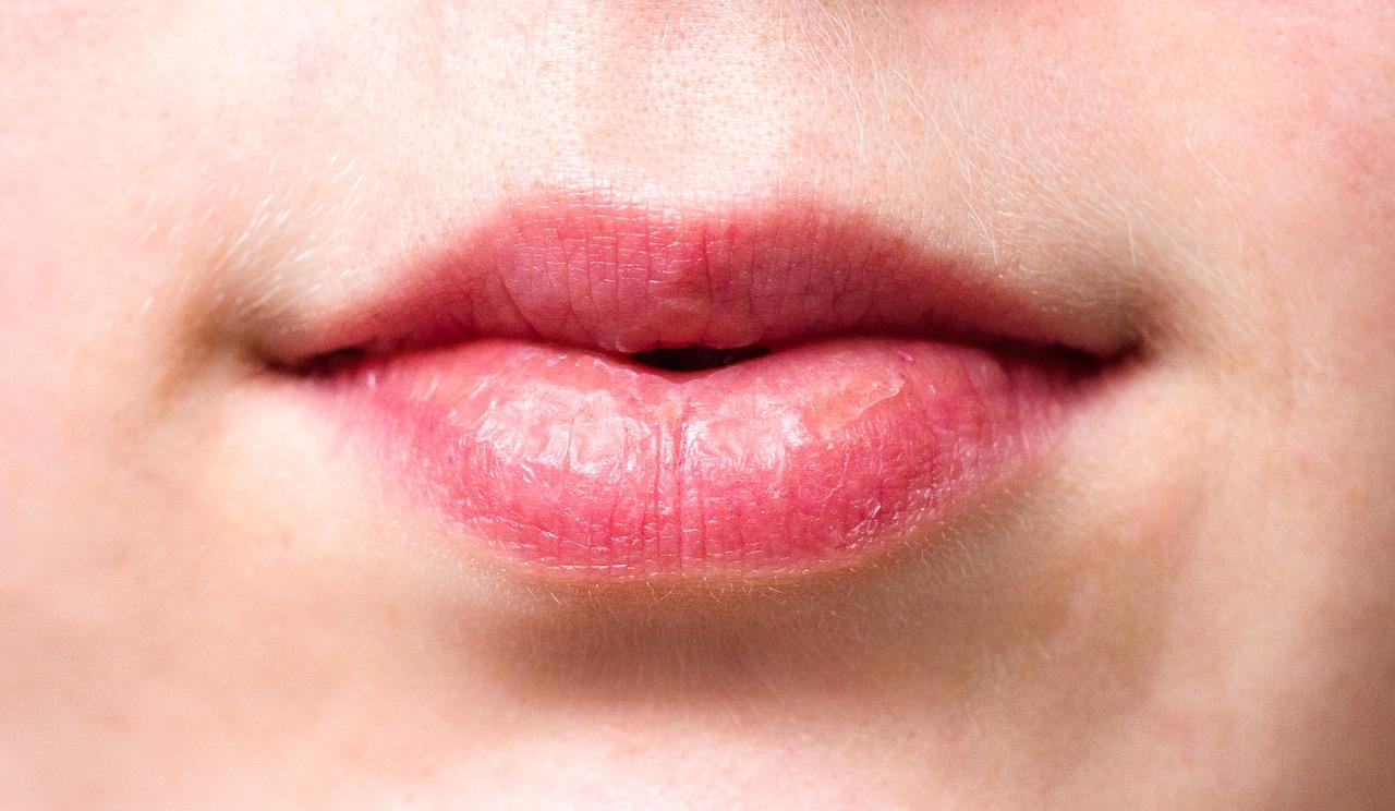 【唇の皮がむける】毎日繰り返す皮むけで白くふやける原因や対策グッズ5選